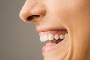 Overbite-treatment-with-Invisalign