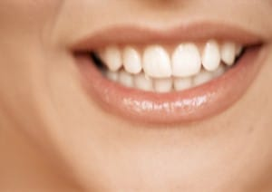 dentist-miami-invisalign-treatement-overcrowded-teeth