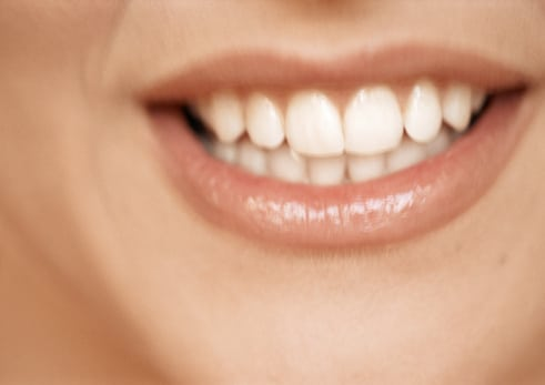 at-home whitening