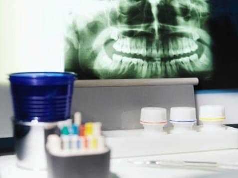 miami-dentist-waterlase-dentistry