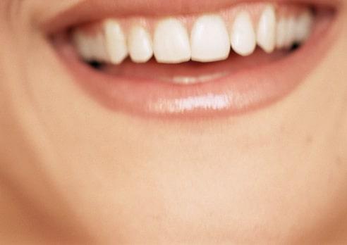 miami-dentist-4-ways-prevent-gum-disease