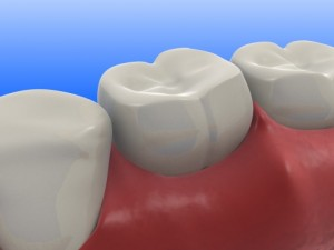 Japanese Researchers Invent Tooth Patch to Prevent Tooth Decay