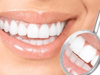 Save on Teeth Whitening and Invisalign® This December