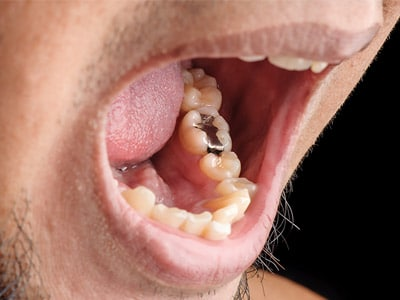 Amalgam Toxicity: Are You Breathing Silver Fillings?