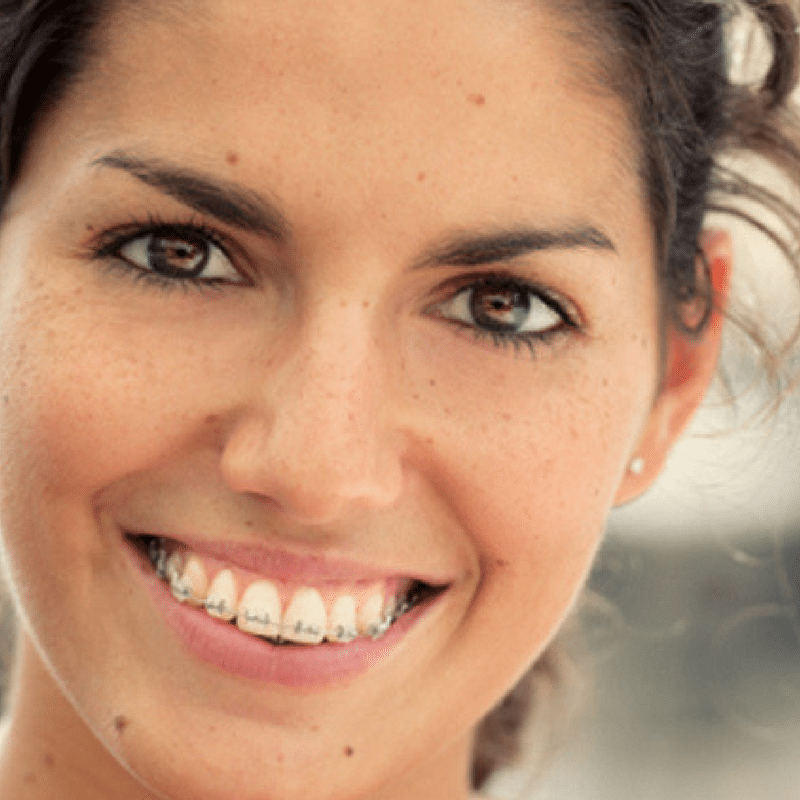adults wearing braces