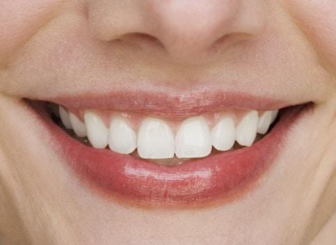 miami-dentist-invisalign-in-miami