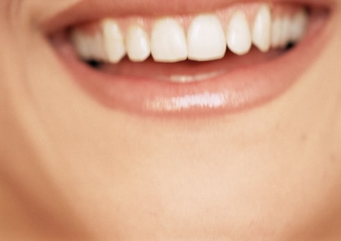 miami-dentist-4-ways-prevent-gum-disease