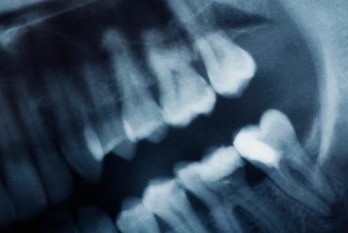 miami-dentistry-safe-mercury-removal