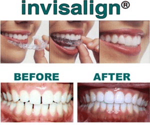 Save $1,000 on Invisalign This December