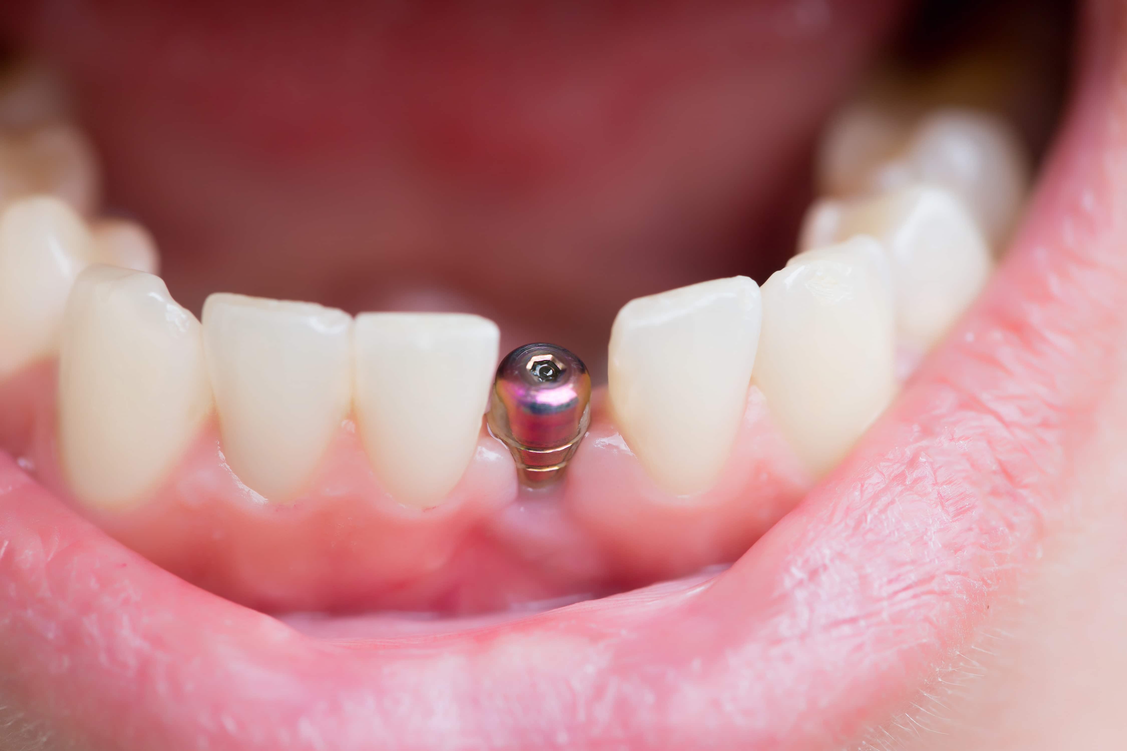 titanium dental implants